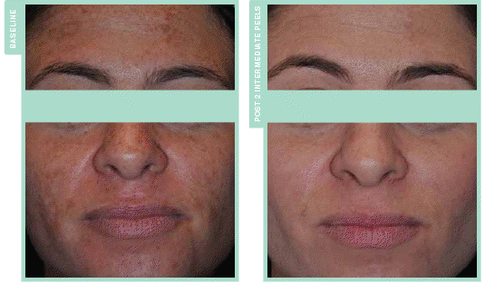 Perfect 10 Peel Before & After Photo